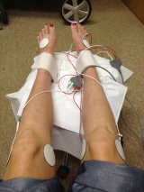 Combined Electrochemical Treatment for Peripheral Neuropathy Post BEPChemotherapy